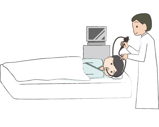 経口内視鏡検査